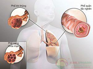 Cách chăm sóc bệnh nhân viêm phổi tắc nghẽn mạn tính tốt nhất