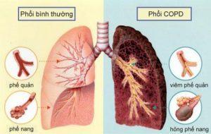 hình ảnh của phổi khi mắc copd