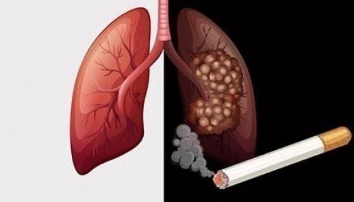 quá trình gây ảnh hưởng từ thuốc lá đến phổi