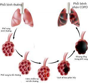 Quá trình tổn thương ở phổi
