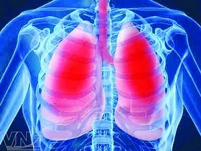 viêm phổi thùy là gì