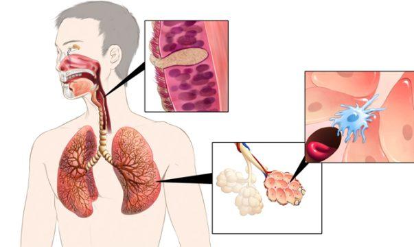 nhiễm trùng đường hô hấp