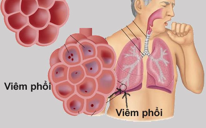Ho có đờm do viêm phổi