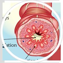 Bệnh phổi tắc nghẽn mạn tính - COPD