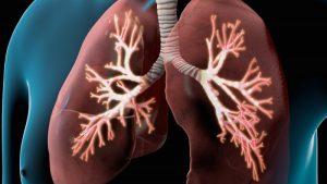 tiêu chuẩn chẩn đoán COPD theo Gold 2017