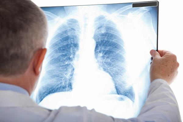 Dấu hiệu viêm phổi dễ thấy nhất